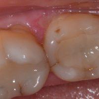 پر کردن دندان با کامپوزیت بهتر است یا آمالگام؟