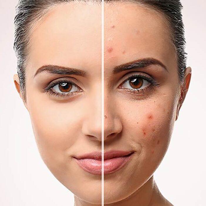 سرطان پوست شایع ترین نوع سرطان در جهان