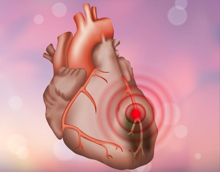 بیماری های قلبی – عروقی و سکته های قلبی و مغزی، اولین علت مرگ در دنیا