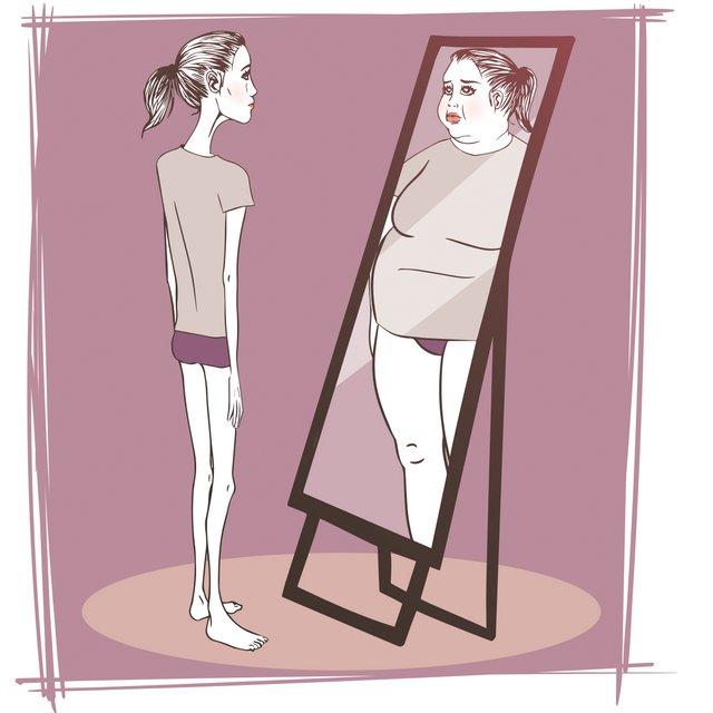 اختلالات تغذیه ای (Eating Disorders)
