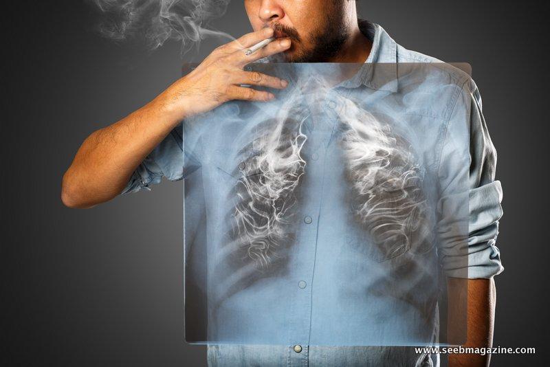سرطان+ریه
