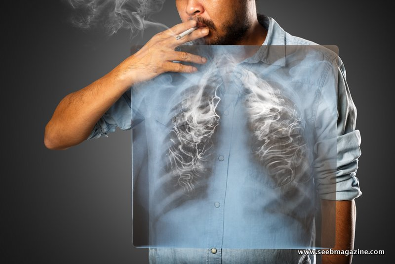 سرطان ریه (LUNG CANCER)