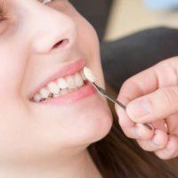 روکش دندان و دلایل نیاز به آنها – قسمت اول
