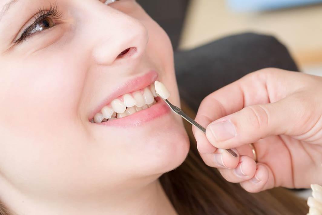 روکشهای دندانی و دلایل نیاز به آنها قسمت اول
