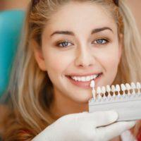 روکش های دندانی و دلایل نیاز به آنها (Dental Crowns) – قسمت دوم