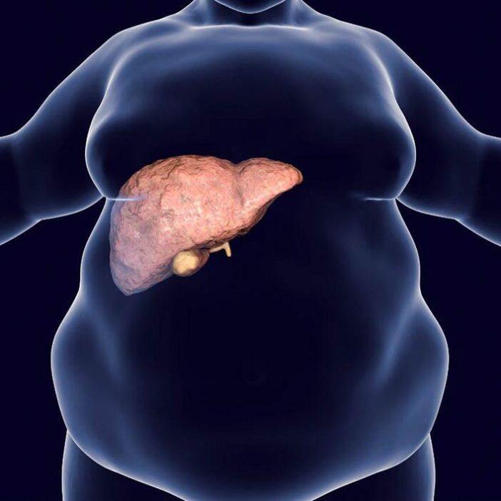 راهکار های درمان کبد چرب و روش های تغذیه ای برای کنترل این بیماری ( قسمت دوم )