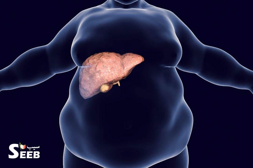 راهکار های درمان کبد چرب و روش های تغذیه ای کنترل این بیماری