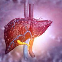 بیماری کبد چرب، انواع آن، علائم بالینی، دارو و درمان بیماری ( قسمت اول )