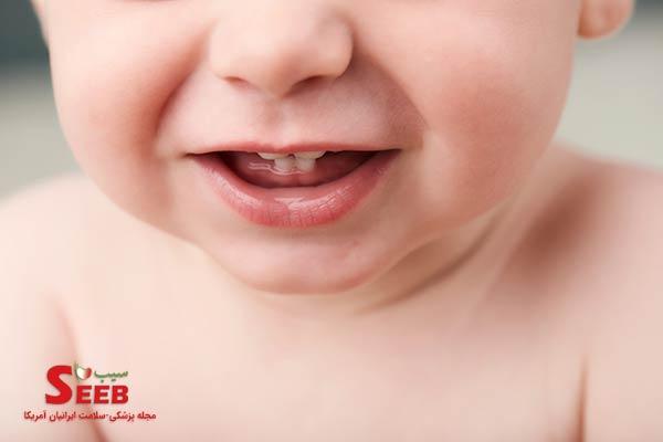 راهکارهای تسکین درد در هنگام دندان درآوردن