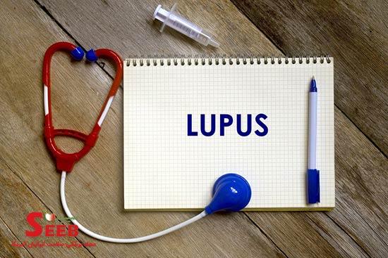 لوپوس چیست ؟