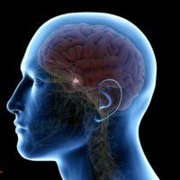 سرطان یا تومور غده هیپوفیز، علائم، نشانه ها و راه های درمان آن