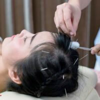 کاربرد طب سوزنی کف سر در درمان برخی از بیماری های عصبی