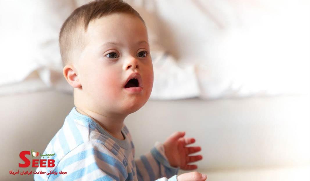 غلبه بر موانع شیردهی در نوزادان مبتلا به سندرم داون