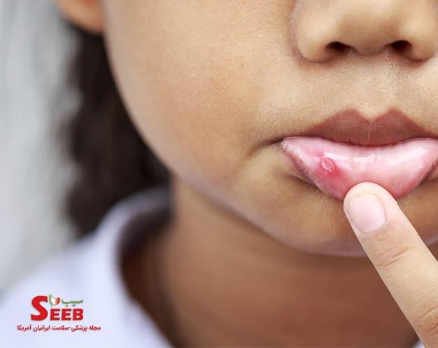 علل و عوامل بروز آفت دهانی