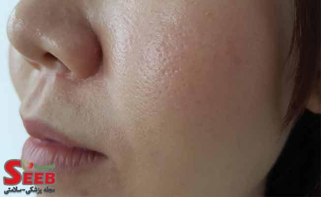 پوست چرب چیست؟ بهترین راه جلوگیری از چرب شدن پوست