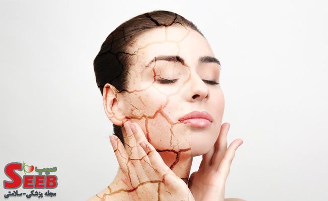 روتین پوست خشک؛ برای مراقبت از پوست خشک چه کنیم؟