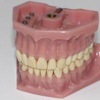 دندان قروچه یا بروکسیسم چیست و چگونه درمان میشود؟