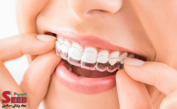 قرص-برای-درمان-دندان-قروچه