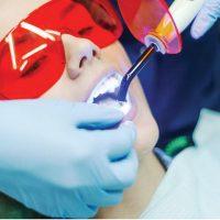 کاربرد لیزر در دندان پزشکی چیست و چه مزایایی دارد؟