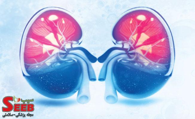 اصطلاحات آزمایش خون و راههای پیشگیری از نارسایی کلیوی