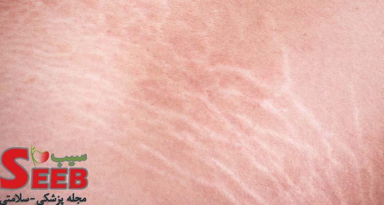 راه درمان ترک پوست بدن