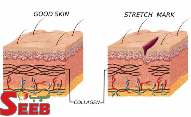 درمان ترک پوستی چیست